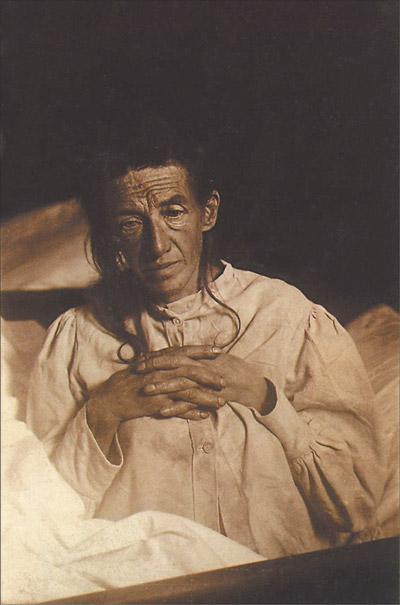 Auguste Deter, patiente d'Aloïs Alzheimer (1902)
